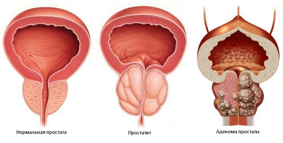 Какая разница между простатитом и аденомой настрой исцеление от простатита