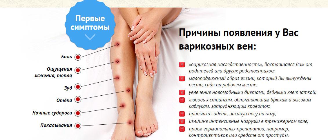 как лечить варикоз вен нижних конечностей